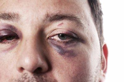 Prevent eye injury in Chicago